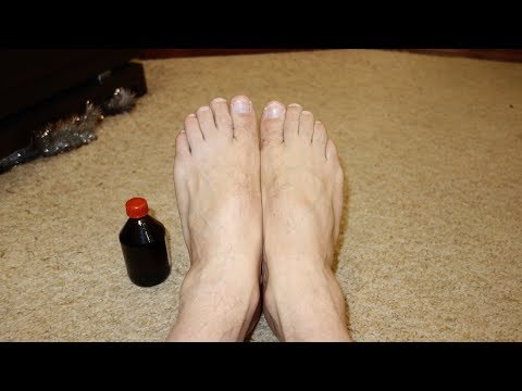 Народные методы лечения грибка ногтей на ногах