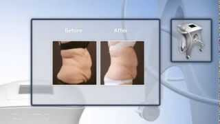 LipoContrast  The Ulimate NonInvasive Fat Removal Techology thumbnail