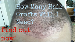 How Many Hair Grafts Do I Need For Hair Transplant? Hair Transplant Before and After