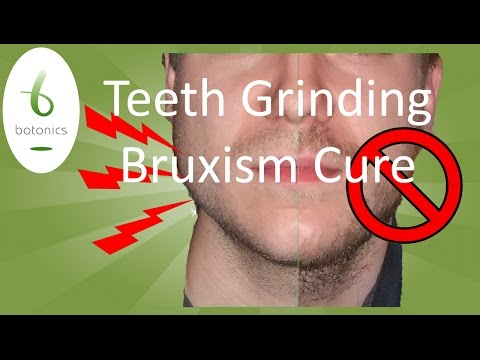 Teeth Grinding, Bruxism, TMJ Treatment in 5 Minutes with Botox*