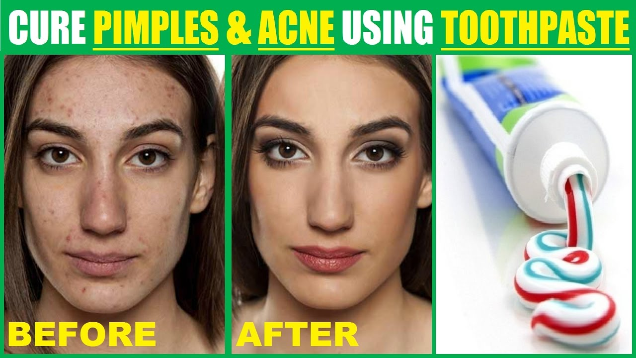 How to reduce red spots on face overnight