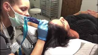 Scalp Micropigmentation - Women