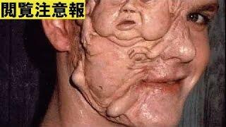 【閲覧注意】しゃべる腫瘍・恐怖の人面瘡(じんめんそう)!