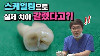 ※실제실험※ 스케일링하면 치아가 갈리는지 진짜 치아로 …