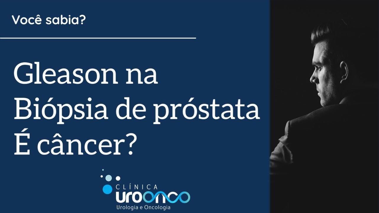 hipertrofie de prostata gradul 2
