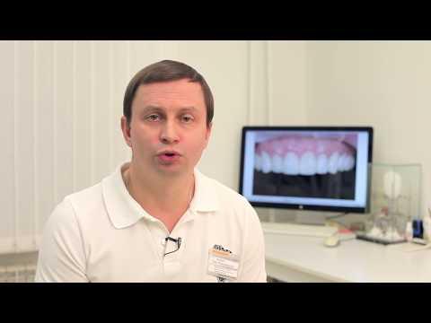виниры на зубы поставить
