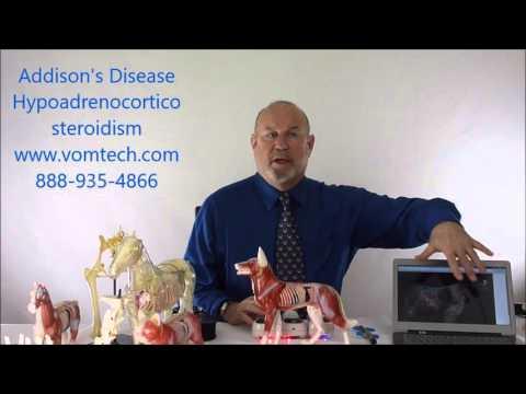 Information on Addison's Disease Hypoadrenocorticosteroidism