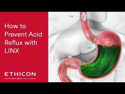 How To Prevent Acid Reflux with LINX | ETHICON