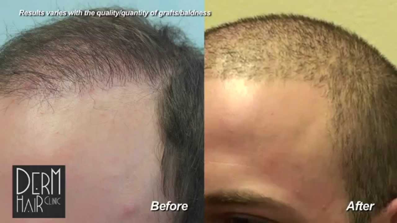 Los Angeles FUE Hair transplant : Buzz cut after body hair transplant and  strip scar repair.