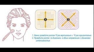 Мезотерапия в домашних условиях,часть 2,мезороллер,избавляемся от постакне