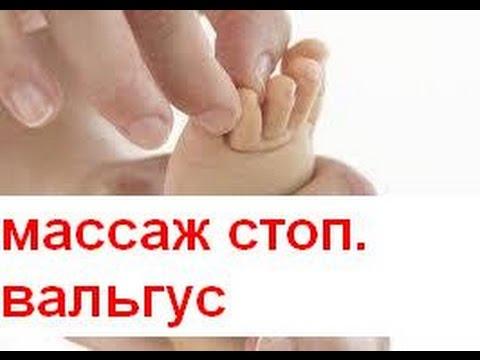 Массаж при вальгусной стопе у детей в кабинете ЛФК, г. Киев - YouTube