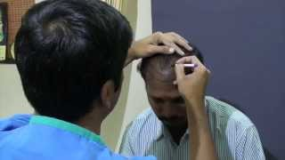 Hair Transplant Procedure Thumbnail