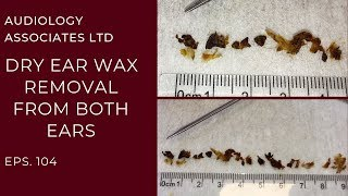 DRY WAX REMOVAL FROM BOTH EARS - EP 104