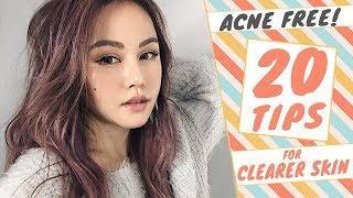 How to GET RID of ACNE | 20 TIPS to Get CLEAR SKIN