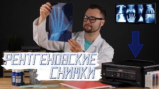 Как напечатать рентгеновские снимки на струйном принтере?
