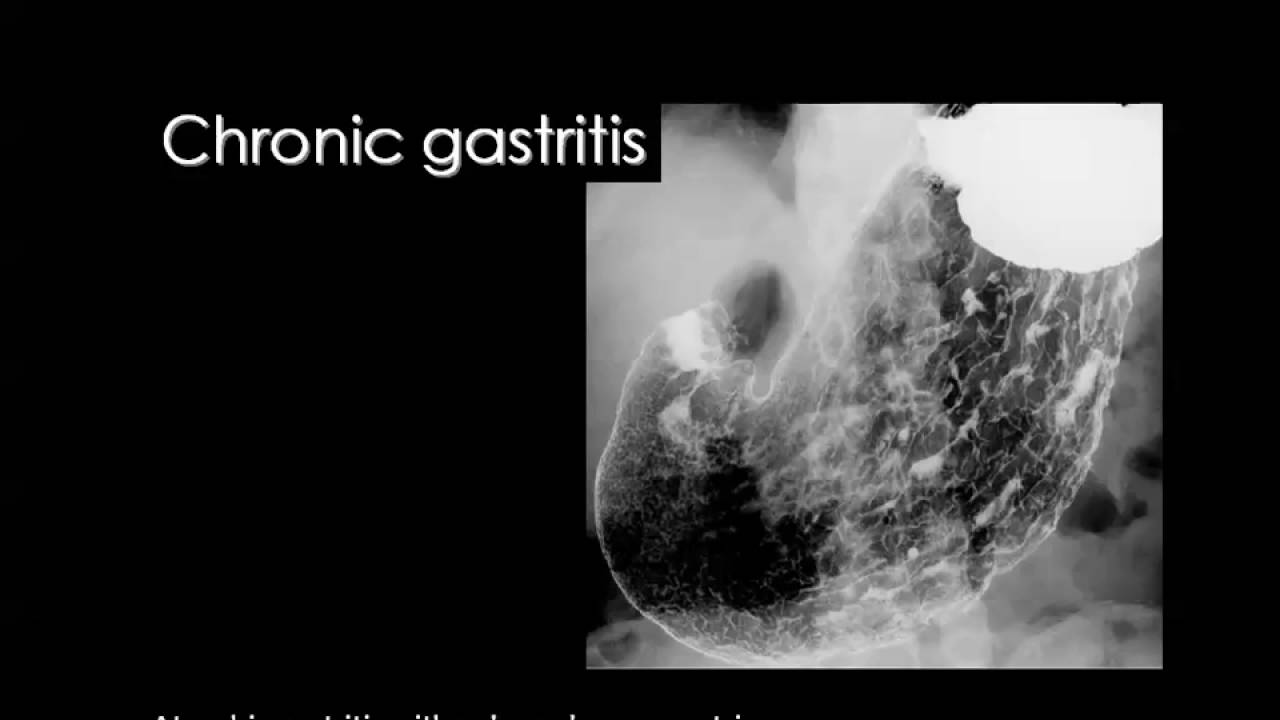 Radiology of stomach barium meal prof dr mamdouh mahfouz in arabic radiology of stomach barium meal prof dr mamdouh mahfouz in arabic 720p ccuart Choice Image
