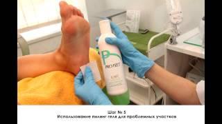 видео Кислотный педикюр или жидкое лезвие для педикюра: особенности процедуры