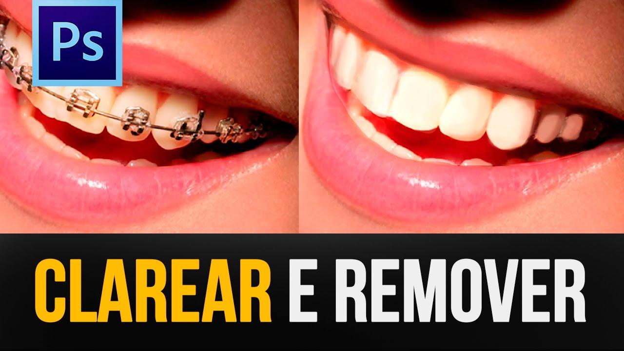 Clarear Os Dentes E Remover Aparelhos No Photoshop Tutorial
