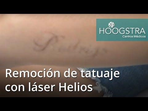 Remoción de tatuaje con láser Helios (18233)