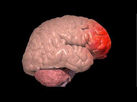 What is a Frontal Lobe Injury?