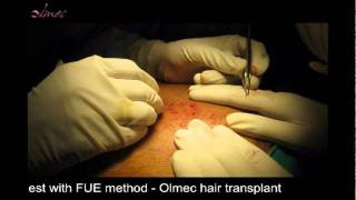9.Hairs being harvested from chest with FUE method Thumbnail