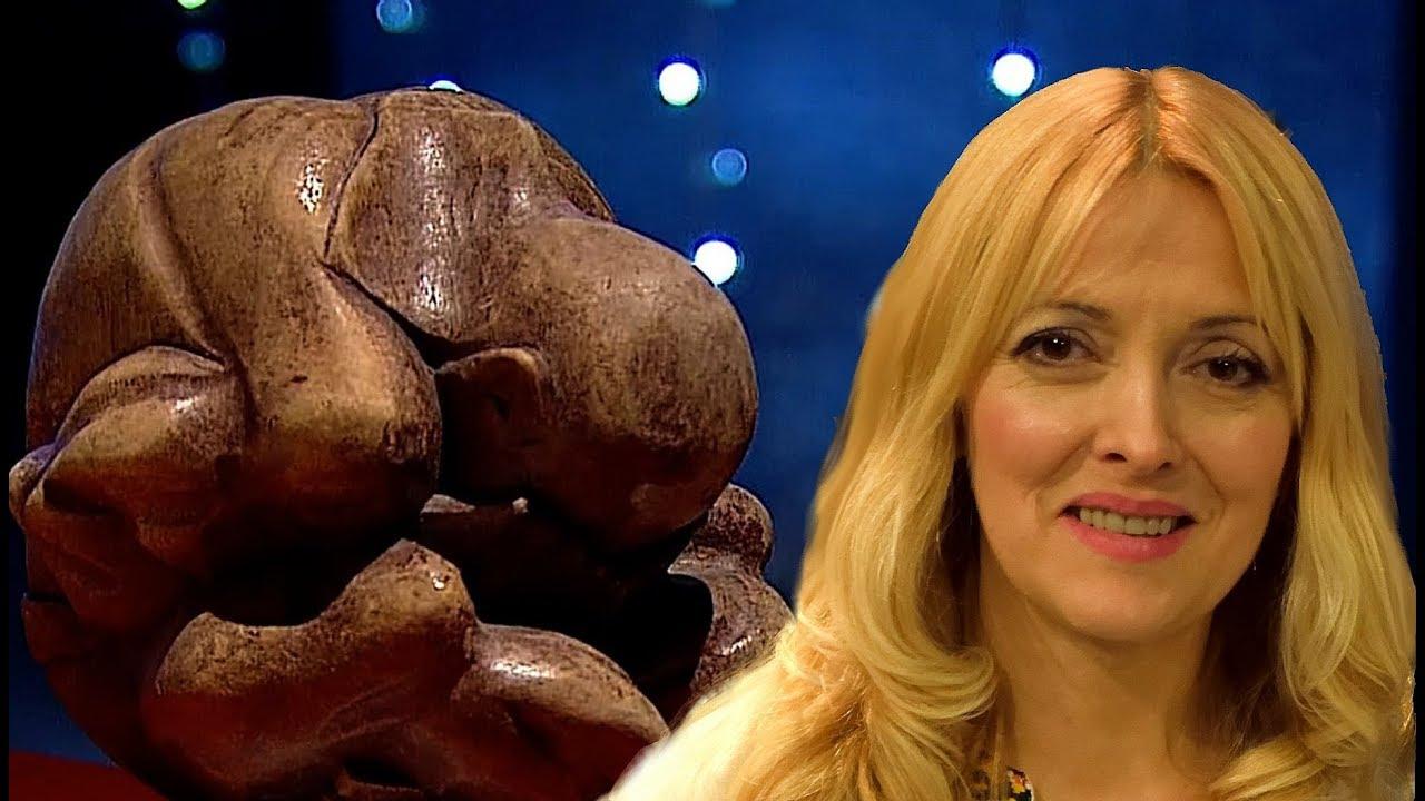 От болезни до чуда - De la boală la Miracol - Lyudmila Scorțescu