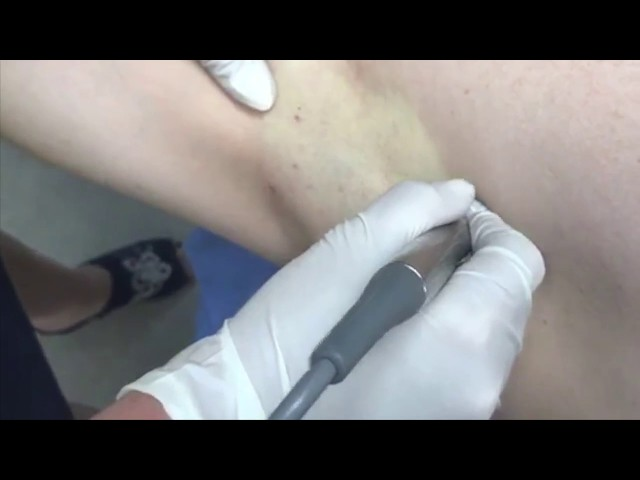 Colorado Springs Armpit Hyperhidrosis (Excess Sweating) Fractora Treatment By Dr John Burroughs