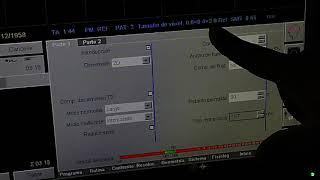 Parámetros secuencia T1 Resonancia magnética