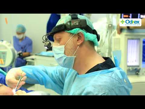 Эндоскопическая подтяжка лба в клинике Odrex