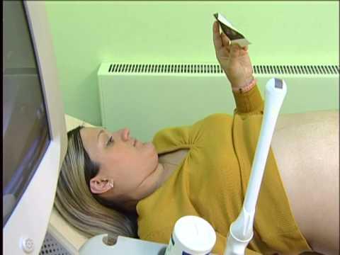 УЗИ во время беременности!