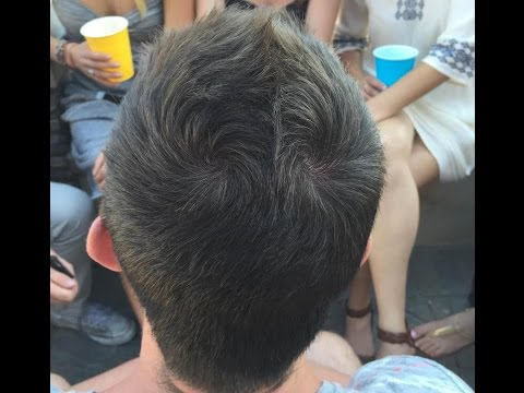 Single hair whorl and sexual orientation