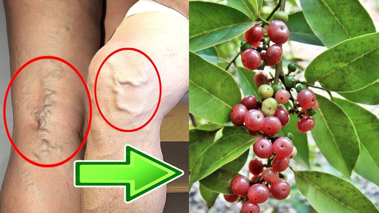 Chân bị phồng mạch máu đừng quá lo lắng, hãy tìm ngay cây thuốc đặc hiệu này