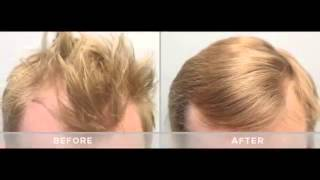 Mens Hair Loss Treatment   Finasteride Propecia Minoxidil Rogaine Before and After 15 Results