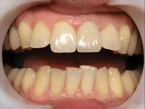 Сломался зуб. Что делать. Протезирование г. Сумы..wmv - YouTube