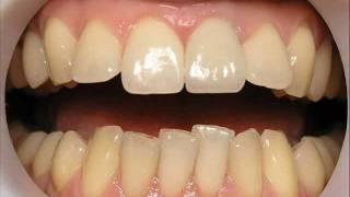 Сломался зуб. Что делать. Протезирование г. Сумы..wmv(Сломался зуб. Что делать. Протезирование г. Сумы.., 2012-02-26T13:45:16.000Z)