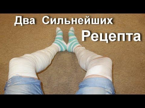 На ногах вены что делать. Как лечить варикоз.  Два Сильнейших рецепта с мумиё