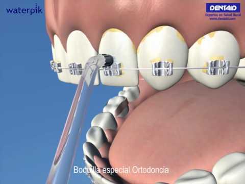 Tu higiene bucal diaria  Ortodoncia - YouTube bba5df5363e5