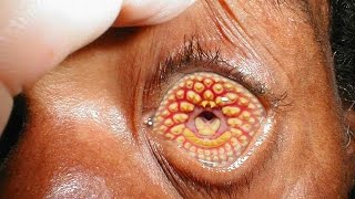 5 Strangest Medical Conditions