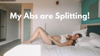 MY ABS ARE SPLITTING, DIASTASIS RECTI! | CARLY ROWENA