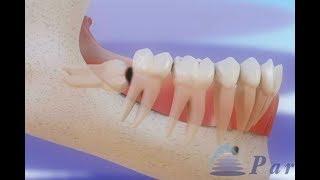 帕尔迪纳斯牙科诊所的三维视频( http://bit.ly/1AWGytT ),展示牙冠周炎及其可能导致的其他并发症, 和拔除智齿的过程。牙齿的常见问题包括包括牙龈...
