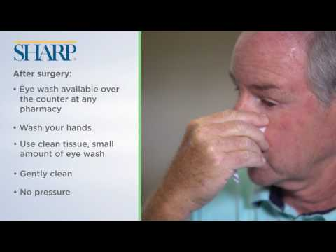 Can i wash my hair after cataract surgery