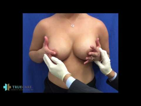 POST OP BREAST AUGMENTATION | DIY BREAST MASSAGE AND EXERCISES from YouTube · Duration:  4 minutes 18 seconds