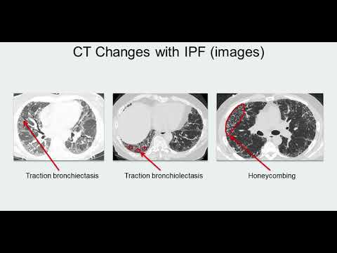 Changes with IPF (Track H Stop 5) IPF: Navigating a Complex Disease