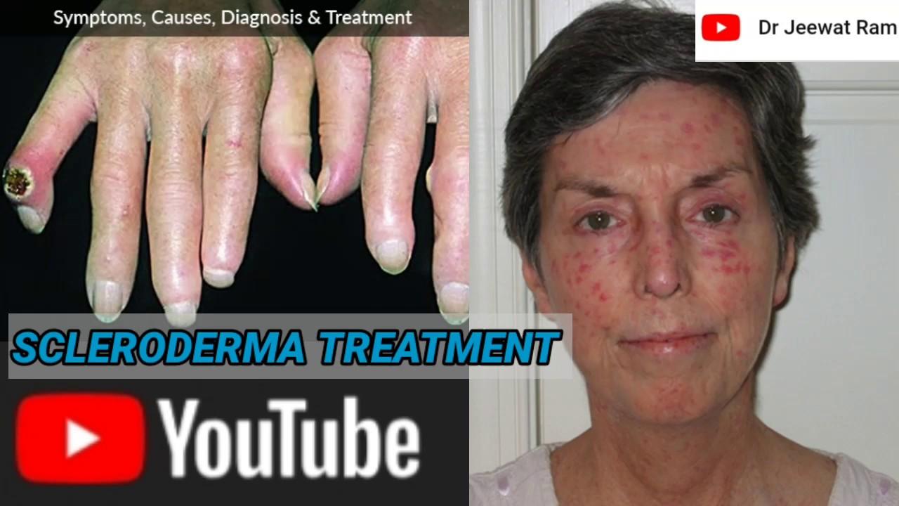 Scleroderma: treatment & management - YouTube