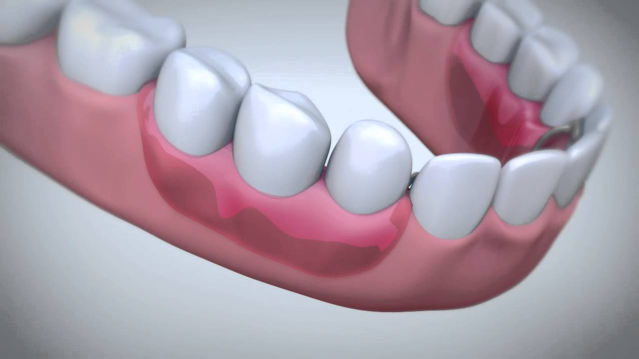 How to keep dentures in place with Fixodent denture adhesive cream - YouTube