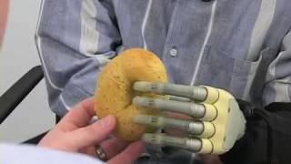 Bionic Hand is a Reality