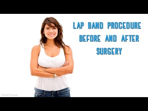 Lap Band Surgery Procedure - Safe WLS Abroad