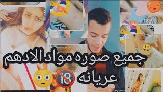 فضيحه موده الادهم ملط وفيديو هدير الهادي عريانه الحكايه كامله |الجزء الثالث مع جميع الصورة
