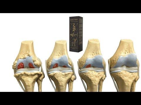 Биотрин гель для суставов отзывы и цена. Биотрин гель отзывы.
