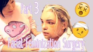 Baixar Facial Feminization Surgery - Day 5 & 6 (GRAPHIC) | Stef Sanjati
